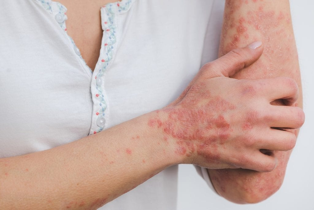 An Integrative medicine approach to autoimmune diseases like psoriasis can be more effective in treating underlying causes.